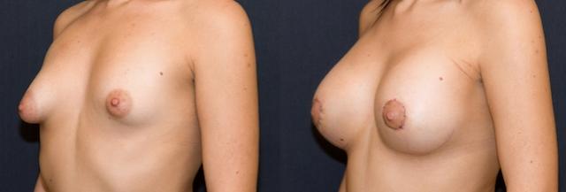 aumento de mama por hipoplasia